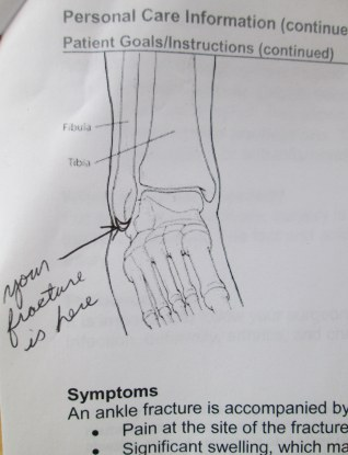 Broken ankle treatment summary 1-2015