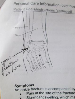 Broken ankle treatment summary 1-2015
